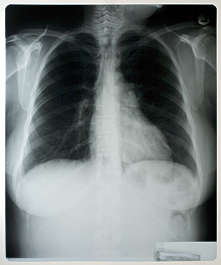 xray chest front