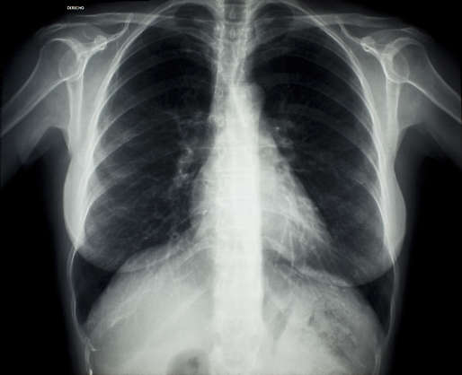 xray chest ribs female