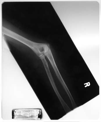 elbow joint arm xray