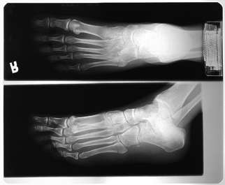 xray foot feet toe toes