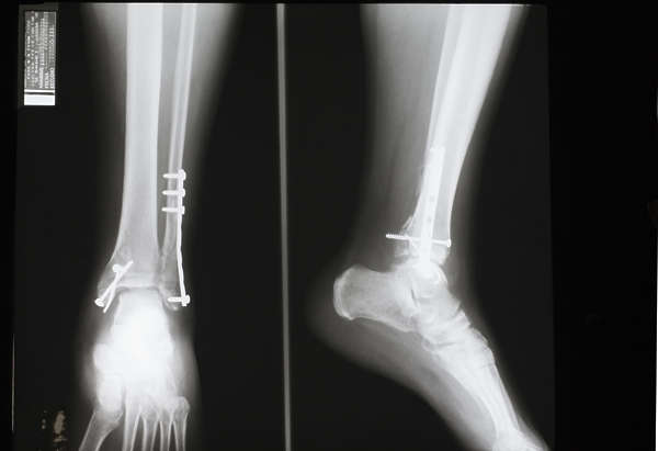 xray ankle broken front side plate fracture