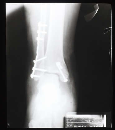 xray ankle foot front plate broken fracture