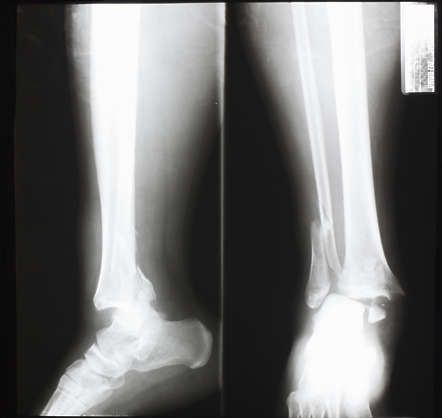 xray ankle broken front side