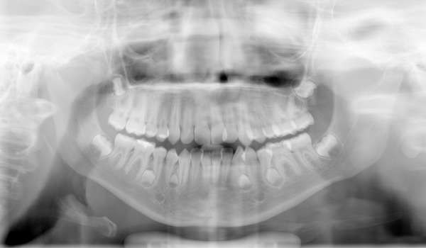 xray head mouth teeth male