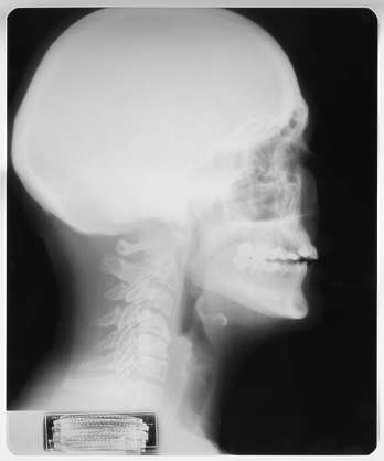 XRay head neck skull lateral side