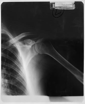 xray shoulder joint chest ribs